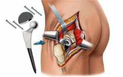 Эндопротезирование в Германии: описание процедуры и подбора протеза